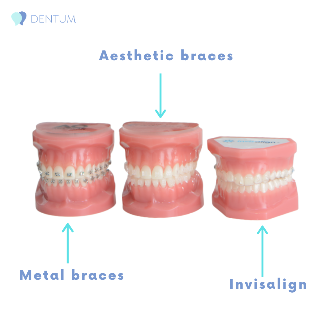 Invisalign, metal and aesthetic braces
